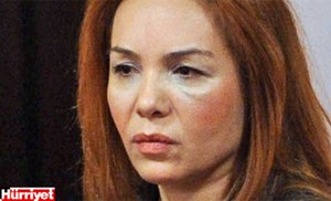 Symbolisch wichtiger Auftritt: Die AKP-Politikerin Fatma Salman zeigte sich mit verschwollenem Gesicht im Plenarsaal des trkischen Parlaments, nachdem sie von ihrem Mann verprgelt worden war.