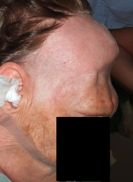 Patientin ohne Schädeldeckenimplantat.