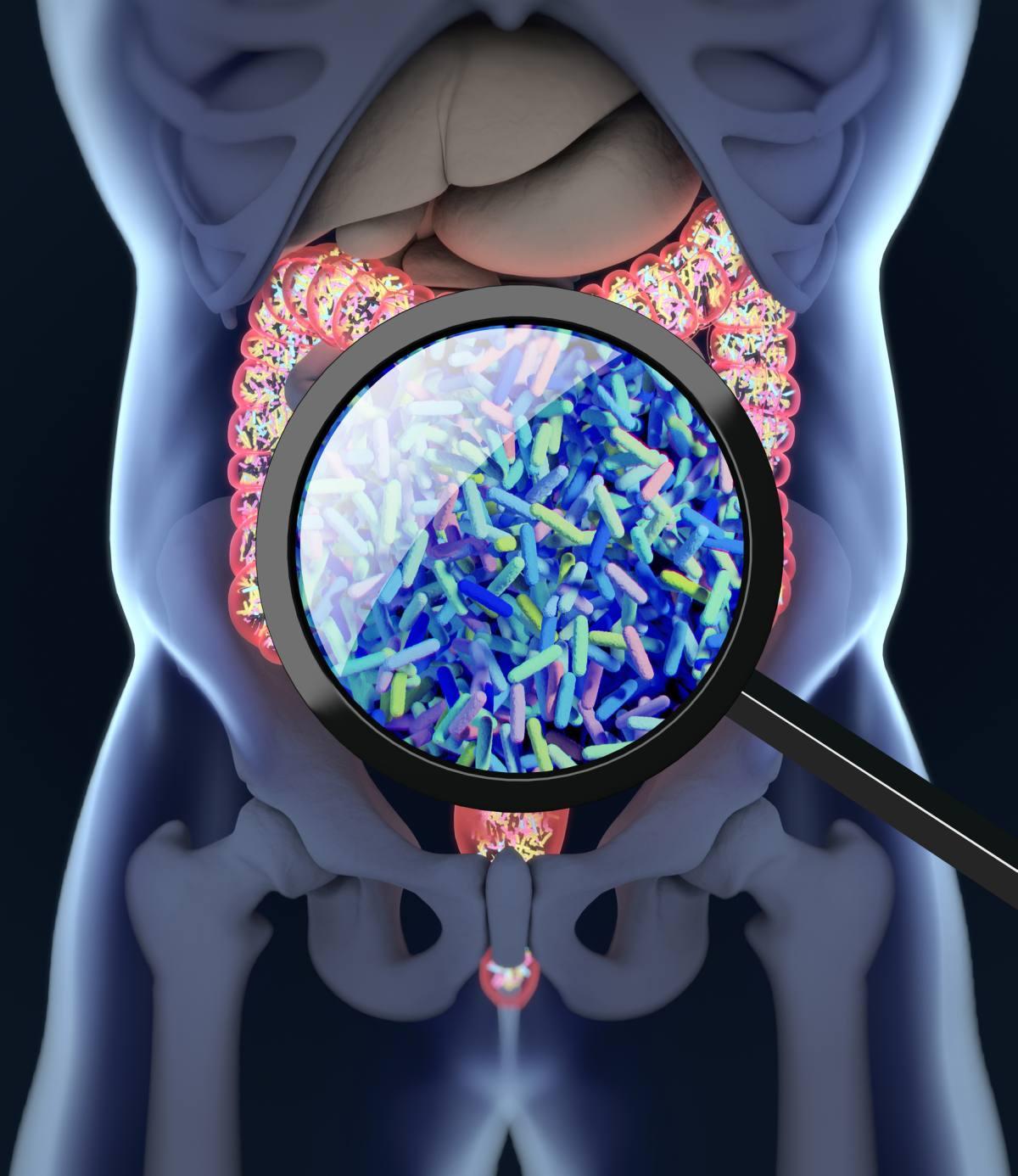 Darmflora kann chronische Entzündungen hervorrufen