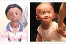 foto: progeria research foundation/meduni wien