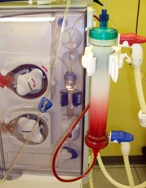 Das Blut fließt im Kapillardialysator von unten nach oben durch feine Hohlfasern
