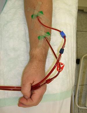 """Im arteriellen Schlauch (rot) befindet sich das zu reinigende Blut, im venösen Schlauch (blau) das """"gewaschene"""""""