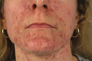 Die Akne vulgaris ist eine entzündliche androgenabhängige Erkrankung der Talgdrüsen.