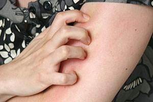 Kratzen hinterlässt Spuren auf der Haut. Der Hautarzt kann differenzieren, ob die Kratzeffloreszenzen auf gesunder oder kranker Haut entstanden sind.