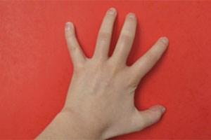 Krätzmilben mögen es warm und fühlen sich daher in den Fingerzwischenräumen besonders wohl.