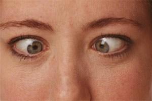 Beim Schielen gelingt es nicht, beide Augen parallel auf ein Objekt zu richten.