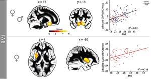 BeiMännern und Frauen treten die übergewichtsbedingten Veränderungen der Hirnstruktur laut den deutschen Forschern vor allem in Hirnregionenauf, die mit der Verarbeitung von Belohnungen (orbitofrontaler Kortex,ventrales Striatum) und der zentralen Steuerung der Energiebalance(Hypothalamus) beschäftigt sind (obere Reihe). Bei Frauen finden sichzusätzlich Veränderungen in Regionen, die wichtig für dieVerhaltenskontrolle sind (dorsales Striatum, untere Reihe;dorsolateraler Präfrontalkortex)