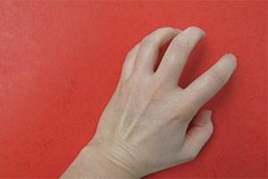 Im Falle der rheumatoiden Arthritis sind die Heilungschancen mittlerweile bei Neupatienten relativ hoch.
