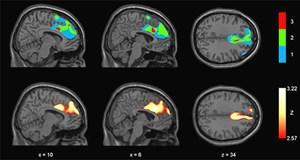 Verhaltensänderungen wie Apathie, enthemmtes Verhalten und Veränderungen im Appetit- und Essverhalten waren insbesondere mit einem verminderten Glukoseumsatz im mittleren Stirnhirn verbunden.