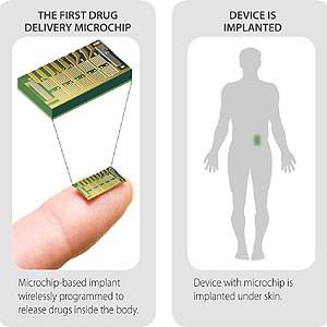 Wo der Chip eingesetzt wird.