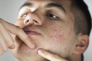"""""""Es geht nicht um Wimmerlnausdrücken"""", betont die Dermatologin Sabine Schwarz. Wenn Akne nicht von innen heraus saniert wird, nutzen Cremes, kosmetische Behandlungen und  der Laser nicht viel."""