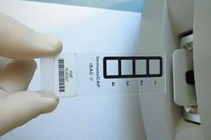 Der Test mit dem Chip zeigt bereits Antikörper, wenn äußerlich noch keine Symptome erkennbar sind