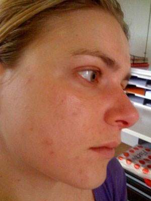Die Entfernung von Aknenarben gilt als kosmetische Indikation, weshalb die Kosten für die Behandlung von den Kassen nicht übernommen werden.