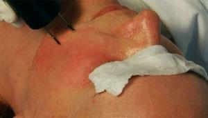 Der fraktionierte CO2-Laser schießt auf sechs Millimeter Kanäle in die Haut, die sich später rundherum neu bildet...