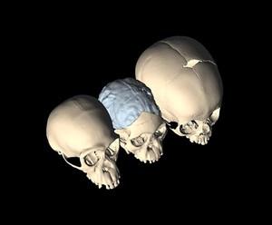 Schädel eines Schimpansen (links), des Taung-Kindes (Australopithecus africanus, Mitte) und eines modernen Menschen (rechts), alle etwa 4 Jahre alt.