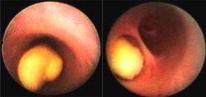 Endoskopische Fotos von Speichelsteinen, die in Ausführungsgängen von Speicheldrüsen liegen.