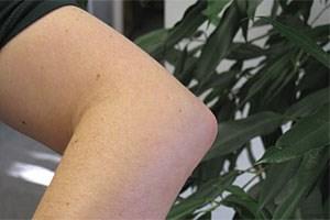An einem Tennisarm laborieren meist Hobbyspieler. Sind die Sehnen erst einmal angegriffen, sind Massage und Schonung angesagt. Eine Operation ist die letzte Option.