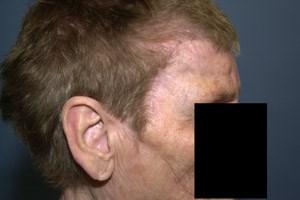 Patientin mit Schädeldeckenimplantat.