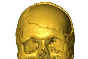 Modell des Implantats im Schädel.