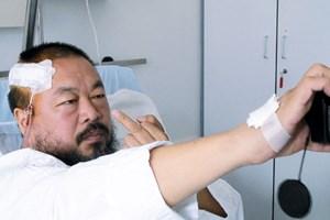 """Fuck you, Motherland!"" - Der Chinese Ai Weiwei mit Kopfverletzung im Spital, ..."