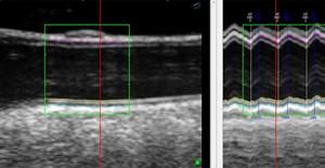 Ultraschallbild der Halsschlagader mit Erkennung der Arterienwand und des Arteriendurchmessers. Links als Standbild, rechts über mehrere Herzzyklen.