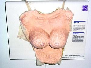 Ehemalige Träume, in Brüsten aus Papiermaché materialisiert: Weil ihrem Partner ihr Busen  zu klein war, musste eine Frau beim Sex die Attrappe tragen. Nach der Trennung stiftete die Besitzerin sie dem Museum der zerbrochenen Beziehungen.