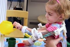 Gedruckte Armstützen ermöglichen der zweijährigen Emma ein selbstständiges Spielen.