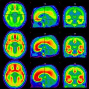 Die Tomographie-Bilder zeigen, dass die Bindung zum mGluR5-Protein (rot=starke Bindung) im Gehirn von Rauchern im Durchschnitt um bis zu 30 Prozent verringert ist (oberste Reihe). Auch die Ex-Raucher (mittlere Reihe) zeigten eine Reduktion dieses Proteins um bis zu 20 Prozent. Die unterste Reihe zeigt die Menge des Proteins im Gehirn von Menschen, die nie geraucht haben.
