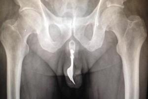 Ob aspirin bei der Thrombose hilft