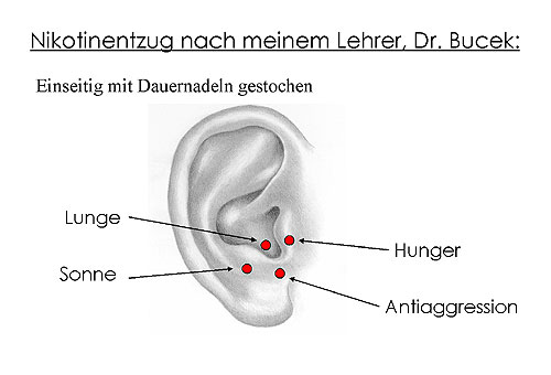 Düsseldorf: Laser-Akupunktur für Raucher