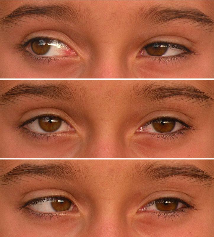 Best Tv Service >> Schielen: Mehr als ein Schönheitsfehler - Augen - derStandard.at › Gesundheit