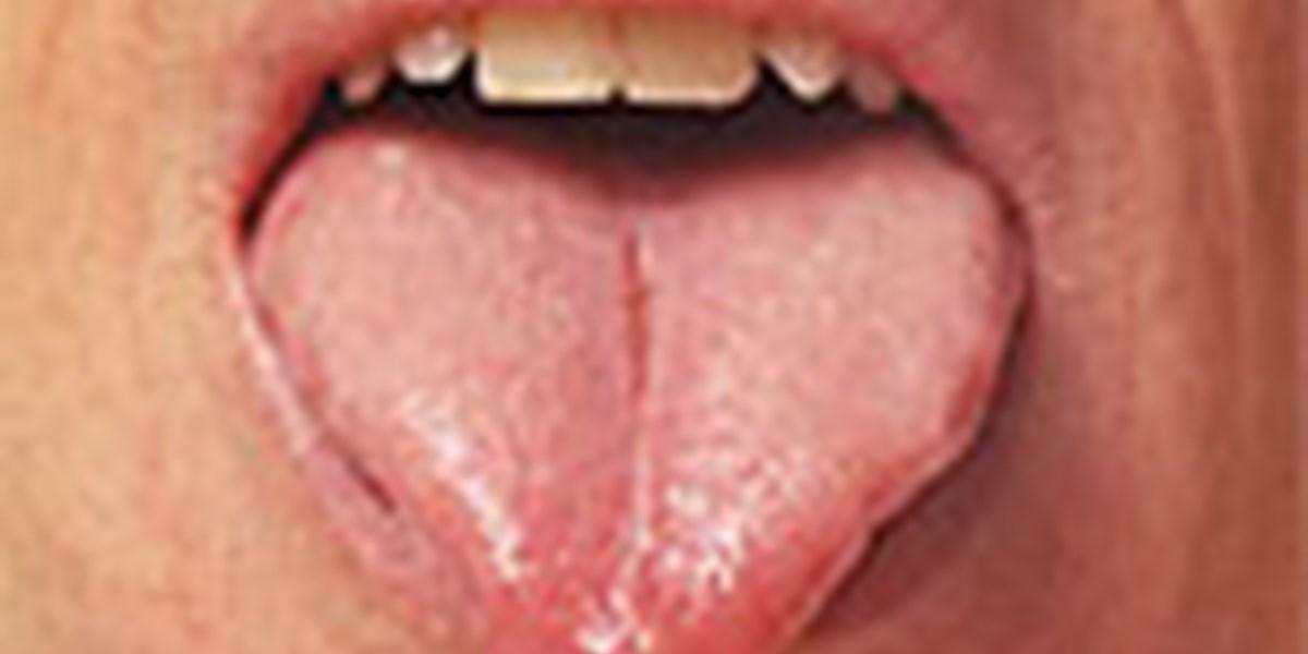 Die Zunge Ist Ein Offenes Buch Traditionelle Chinesische Medizin