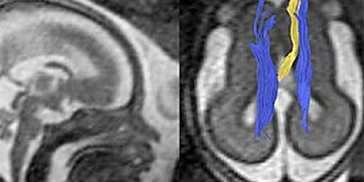 Nervenbahnen Gehirn