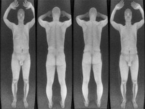 Forscher Schmuggeln Waffen Und Sprengstoff Durch Nacktscanner