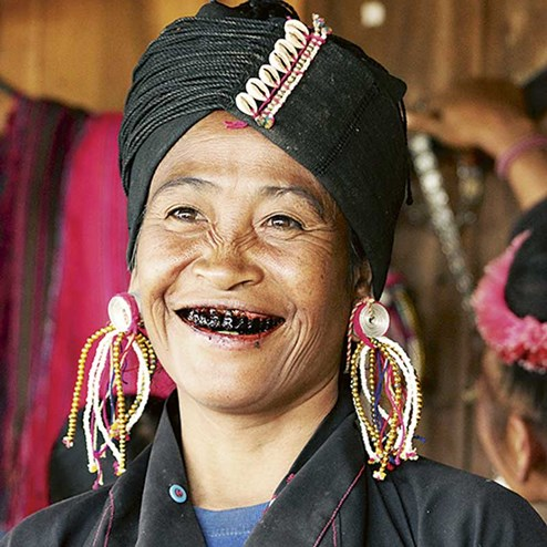 Japan schwarze zähne