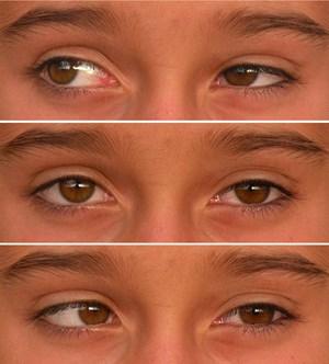 Schielen Mehr Als Ein Schönheitsfehler Augen Derstandardat