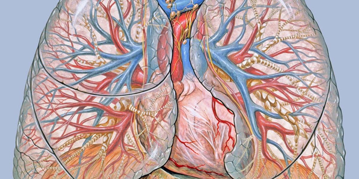 Herzinfarkt verhindern: Stent oder Bypass? - Herzinfarkt ...