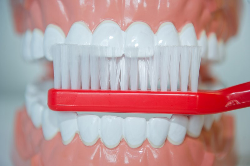 Gen-Defekte im Zahnschmelz: Karies trotz Zähneputzen - Zähne