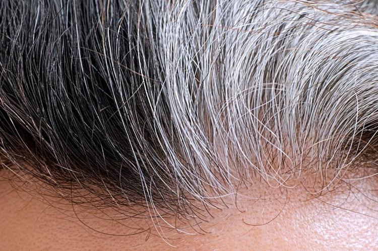 Wieso Haare Grau Werden Dermatologie Derstandardat