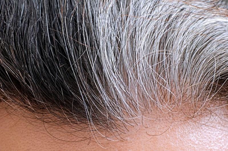 Wieso Haare Grau Werden Dermatologie Derstandardat Gesundheit