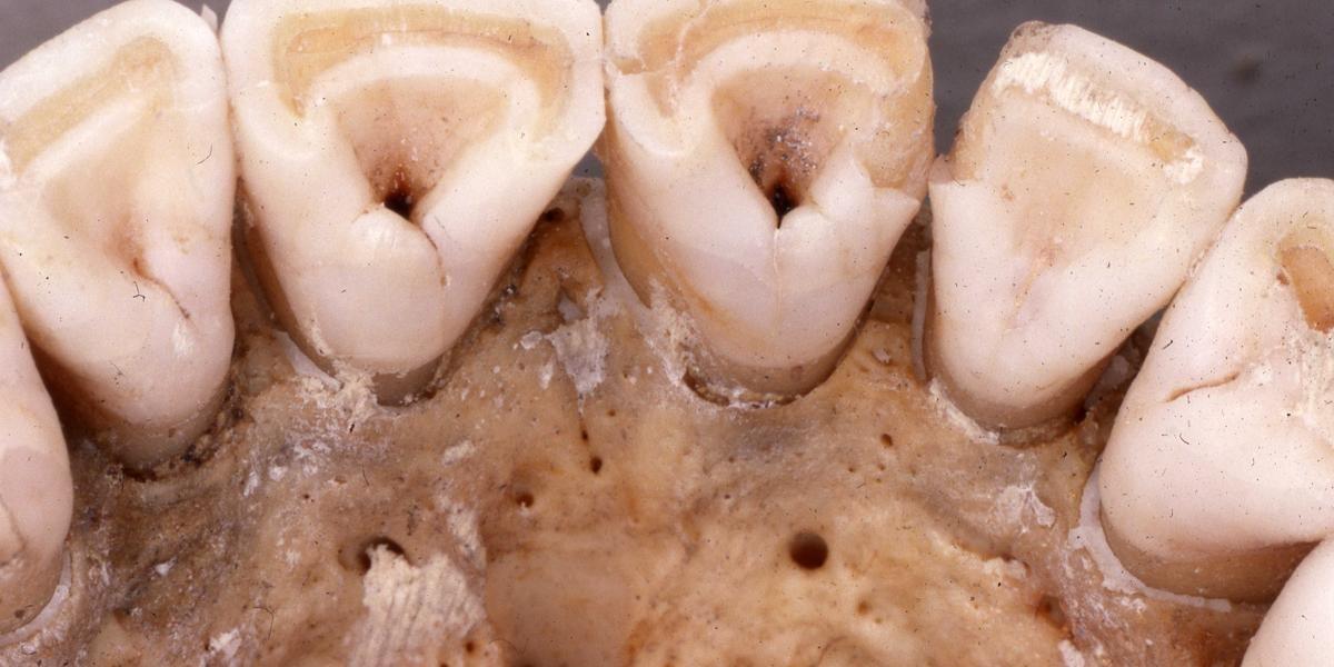 Ur-Amerikaner besaßen genetische Besonderheit