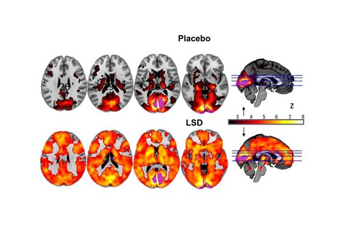Erste wissenschaftliche Studie zu mikrodosiertem LSD startet