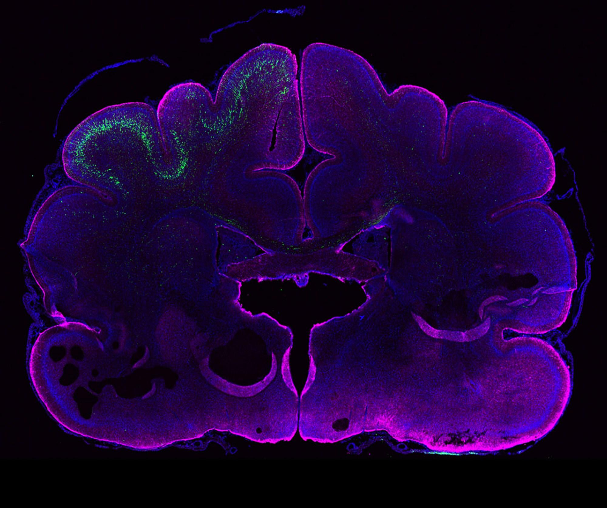 Menschliches Gen vergrößert im Experiment Gehirn von Frettchen