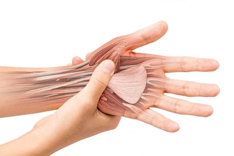 Was hilft bei sehnenscheidenentzündung