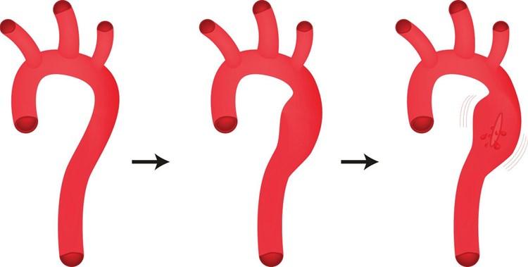 dissektion aorta