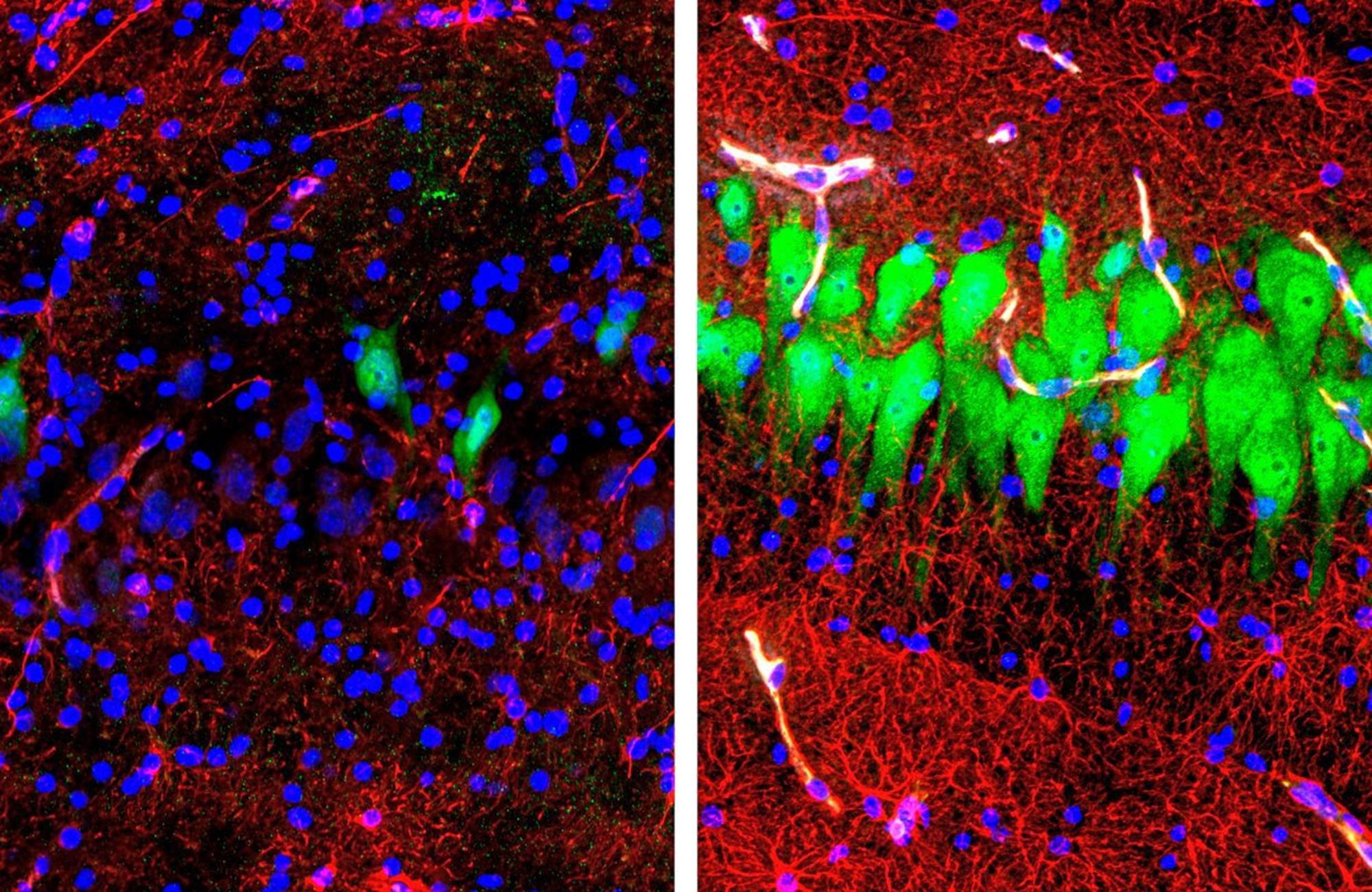 Hirnzellen Stunden nach dem Tod wieder aktiviert – derStandard.at