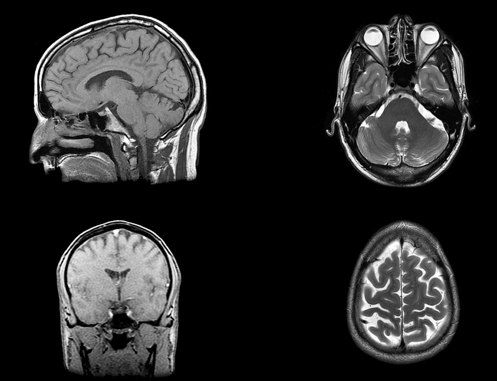 Unser Gehirn spielt in Ruhephasen Erfahrungen im Zeitraffer wieder ab