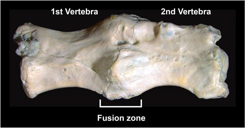 Knochenkrankheit ist fast 300 Millionen Jahre alt