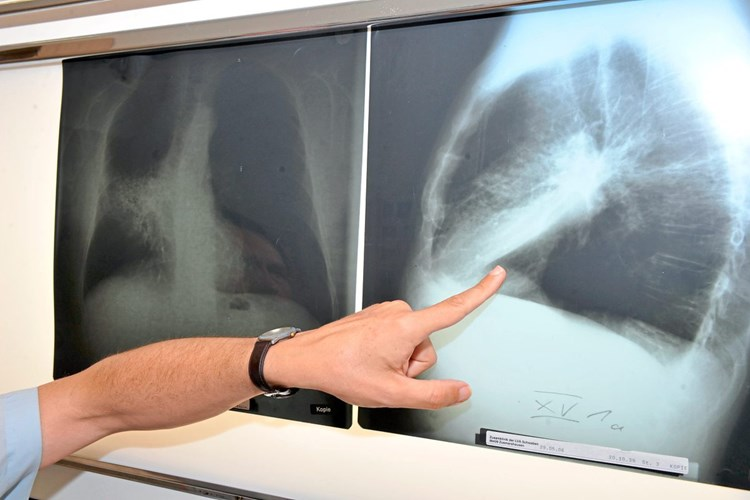 lungenkrebs kleinzellig lebenserwartung