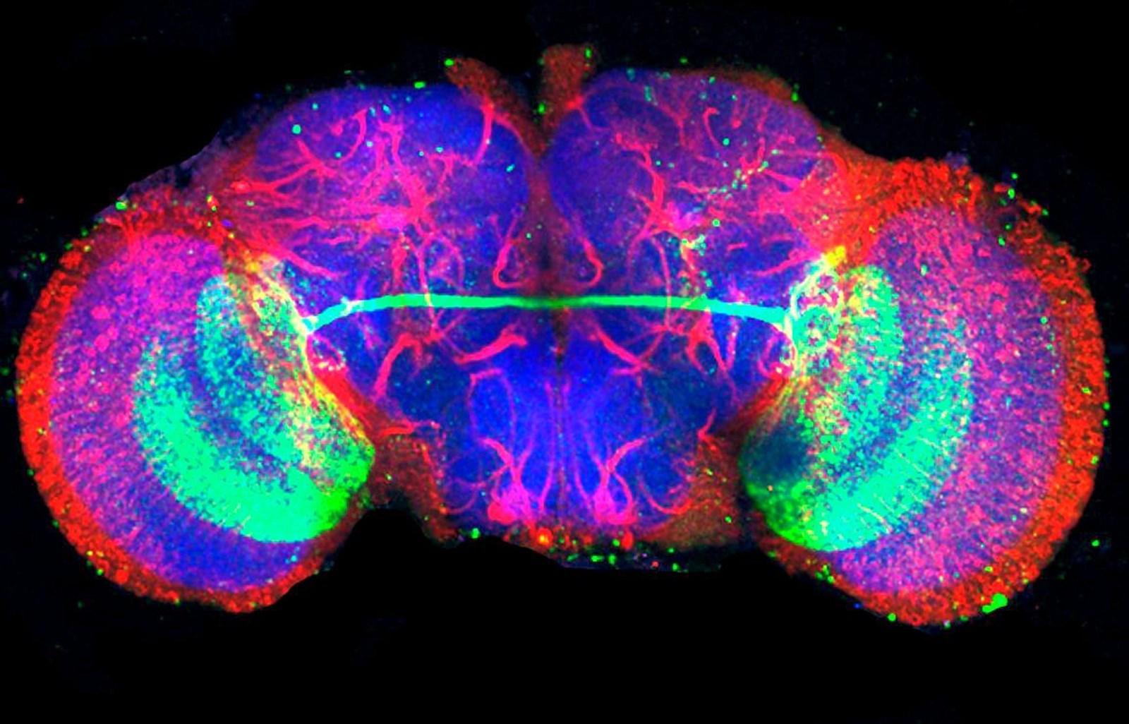 Forscher entschlüsseln die Verkabelung der Gehirnhälften – derStandard.at